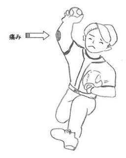 「野球肘」の画像検索結果